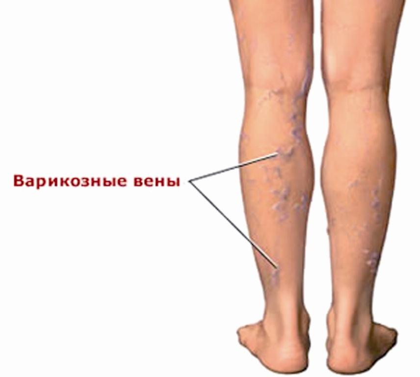 Косточка на ноге  kostochkananogecom